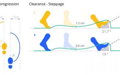 Foot Technology