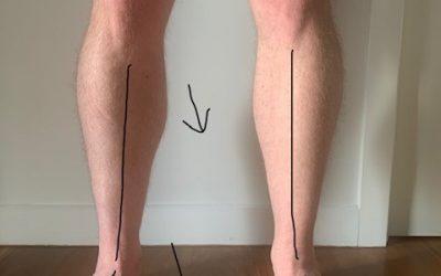 Knee pain vs flat feet
