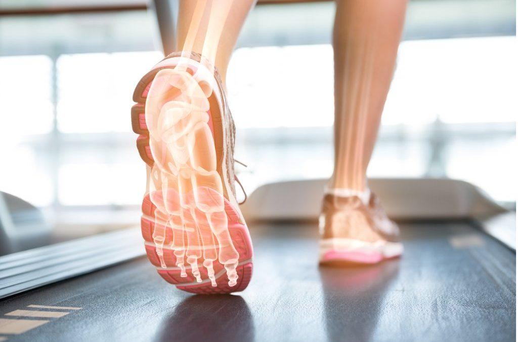 Does the way I walk cause my heel pain?